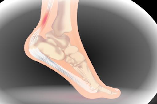Achilles tendinitis